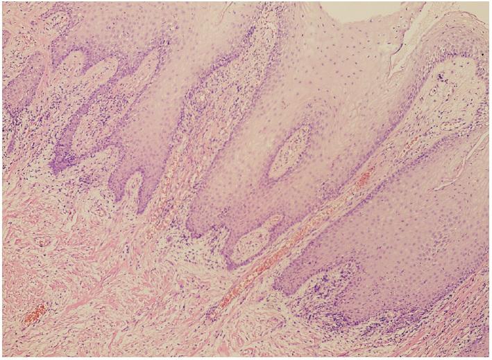 Akantotický dlaždicový epitel s okolitým chronickým nešpecifickým zápalom (farbenie hematoxylín-eozín, zväčšenie 100×)