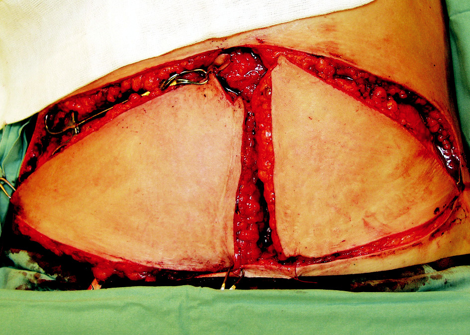 Fig. 2. Harvest of the right hemi-abdominal DIEP flap. The left flap was left on the abdomen