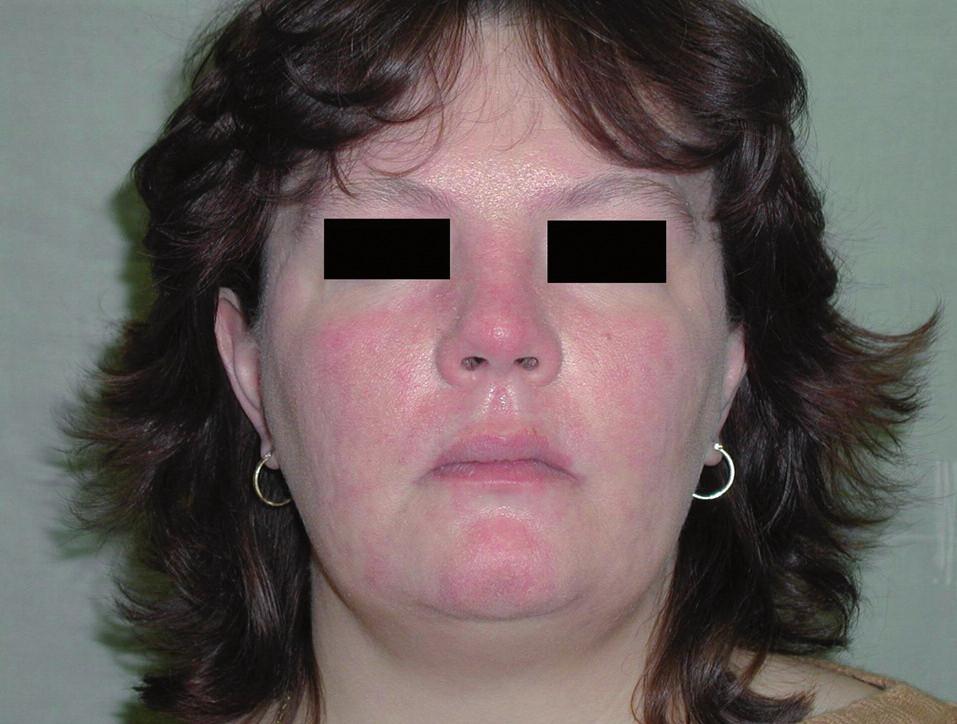 Klinický efekt po ukončení terapie.