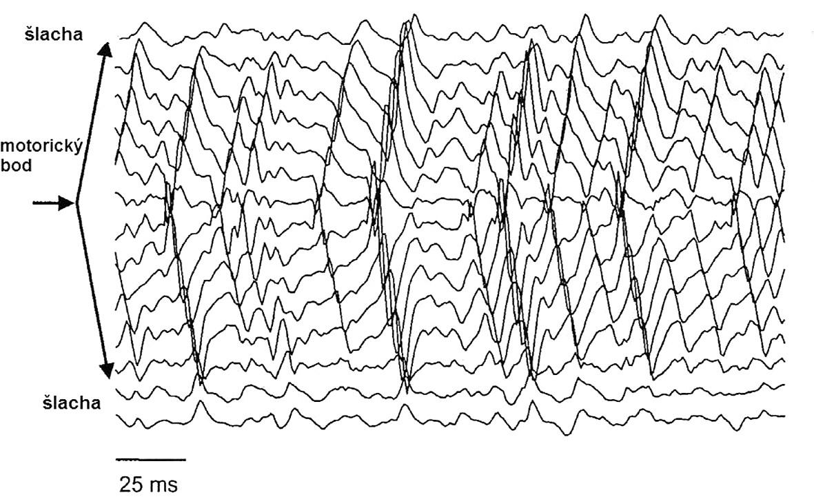 """Příklad HD-sEMG v bipolárním zapojení za použití jednoduchého diferenciálního zesilovače z m.biceps brachii při 70 % MVC. Oblast inervační zóny je charakterizována přítomností """"zvratu fáze"""" akčních potenciálu. Propagace různých motorických jednotek je patrná z jejich časového zpoždění mezi jednotlivými kanály. Změna amplitudy MUAP, respektive její vymizení, odpovídá muskulo-tendinóznímu přechodu (22)."""