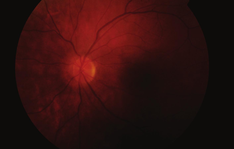 Fundus levého oka 2 měsíce po vzniku pretrombotického stavu