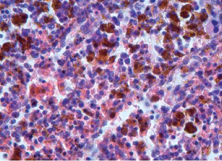 Mohutná depozita hemosiderinu ve slezině, hematoxylin-eosin