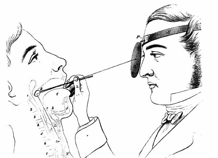 Kresba vysvětlující laryngoskopické vyšetřování