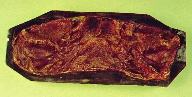 Obr. 8a Překrytí původních kloubních jamek dodatečně vytvořenou kostí (kopie).
