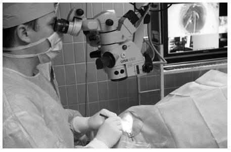 MUDr. Dalibor Cholevík při Live surgery operuje prémiovou nitrooční čočku