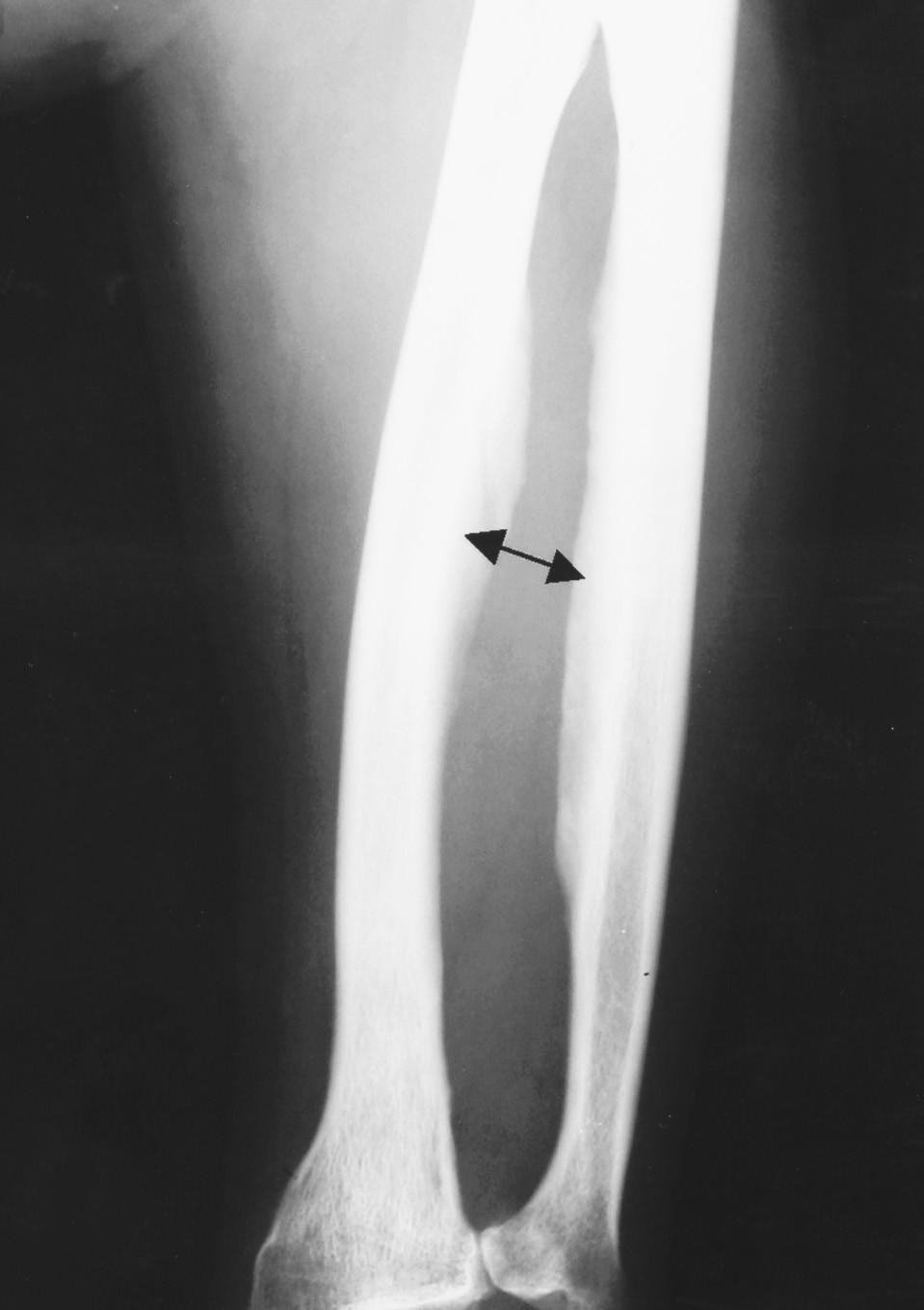 Fluoróza II.–III. štádium Osteoskleróza diafýzy kostí predlaktia a osifikácie v membrana interossea (šípky)