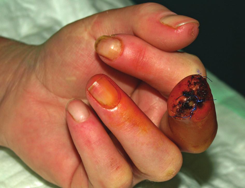 Stav v prosinci 2010. Po chirurgické amputaci distálního článku 3. prstu levé ruky. Hojení je komplikováno infekcí v ráně s částečnou dehiscencí sutury.