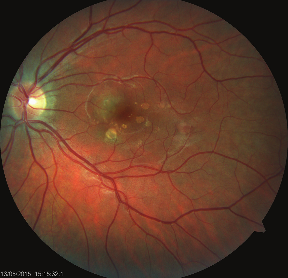 Levé oko. Nález akutního zánětlivého ložiska v centrální krajině sítnice