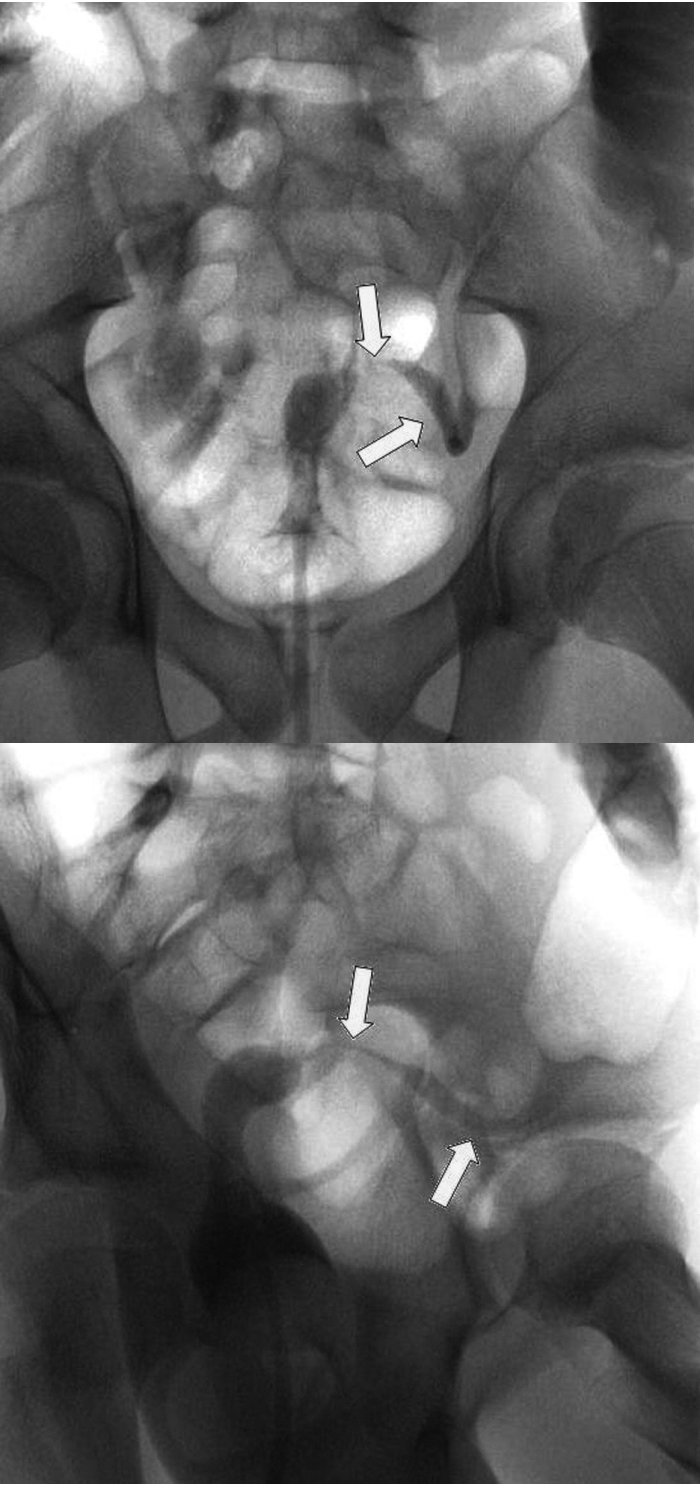 a, b. Irigoskopie vodnou kontrastní látkou. Těsná stenóza v oblasti rektosigmatu (průsvit 2 mm délka, do 2 cm), stenóza vrcholu rektální ampuly a sigmatu (průsvit 1 cm, délka 7 cm). Fig. 2a, b. Irrigoscopy by water-based contrast medium. A narrow stenosis in the rectosigmoid area (diameter 2 mm, length up to 2 cm), stenosis on the top of the rectal ampule and sigma (diameter 1 cm, length 7 cm).