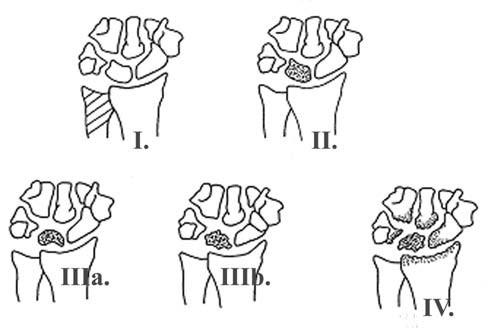RTG klasifikácia morbus Kienbock podľa Lichtmana:  I. st. minus varianta ulny bez RTG zmien lunta, II. st. kondenzáci a lunata, III. st. a,b štádium, III. b st. je spojený s rotačnou nestabilitou os scaphoideum, IV. st. sekundárna pankarpálna artróza