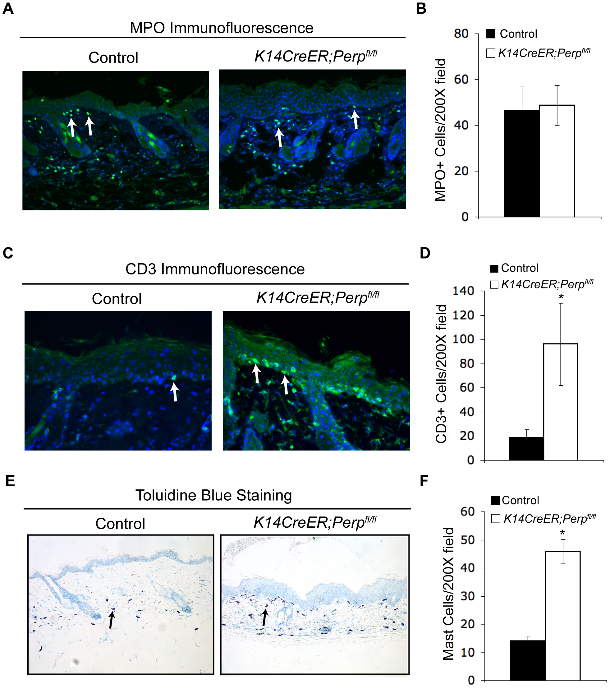 Combined Perp-deficiency and chronic UVB exposure induce immune cell infiltration in the skin.