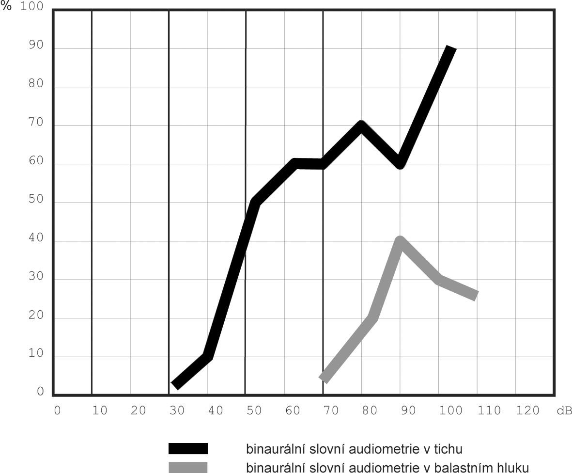 Výsledek slovní audiometrie v tichém a hlučném prostředí.