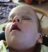 Drobné odchylky kraniofaciálního skeletu spojené s rizikem rozvoje OSA – deviace nosního septa, vysoké úzké tvrdé patro, 1. pacient.