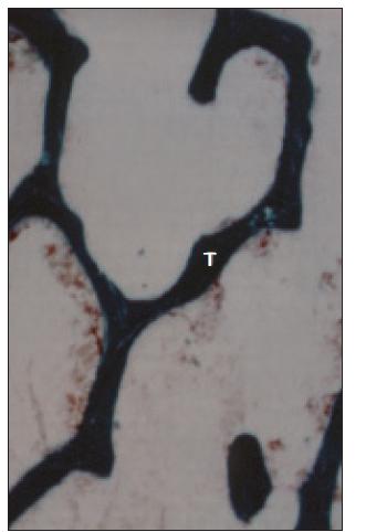 Histologický obraz normální kosti. Povrch trámčité kosti (T) je hladký, bez nápadnějších resorpčních lakun.
