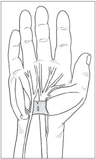 Berrettiniho anastomóza mezi <em>nn. medianus</em> a ulnaris podle původního zobrazení.