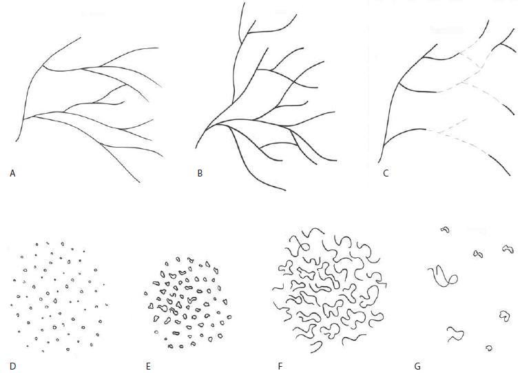 Klasifikace intraepiteliálních kapilárních kliček zobrazovaných při NBI endoskopii (modifikováno dle Ni et al) [6].
