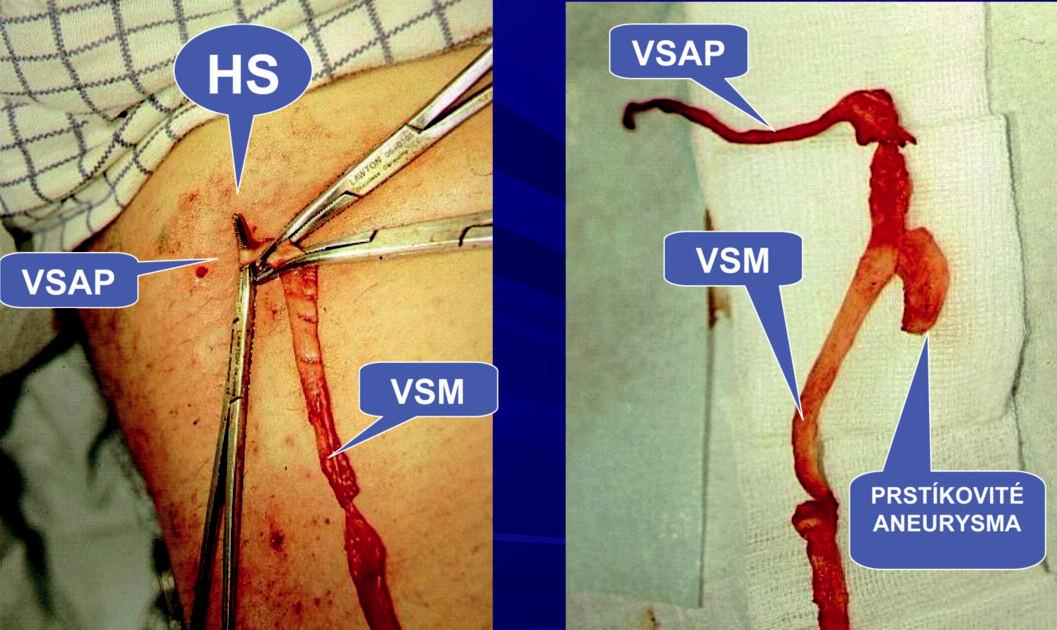 Ambulantní flebektomie. Safénový komplex typ I – z VSM odstupuje v HS VSAP