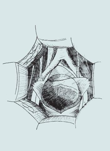 Parciální myektomie. (A – preparace svaloviny detruzoru B – vytvoření arteficiálního pseudodivertiklu s ponecháním intaktní sliznice C – fixace okrajů stěny močového měchýře oboustranně k m. psoas)