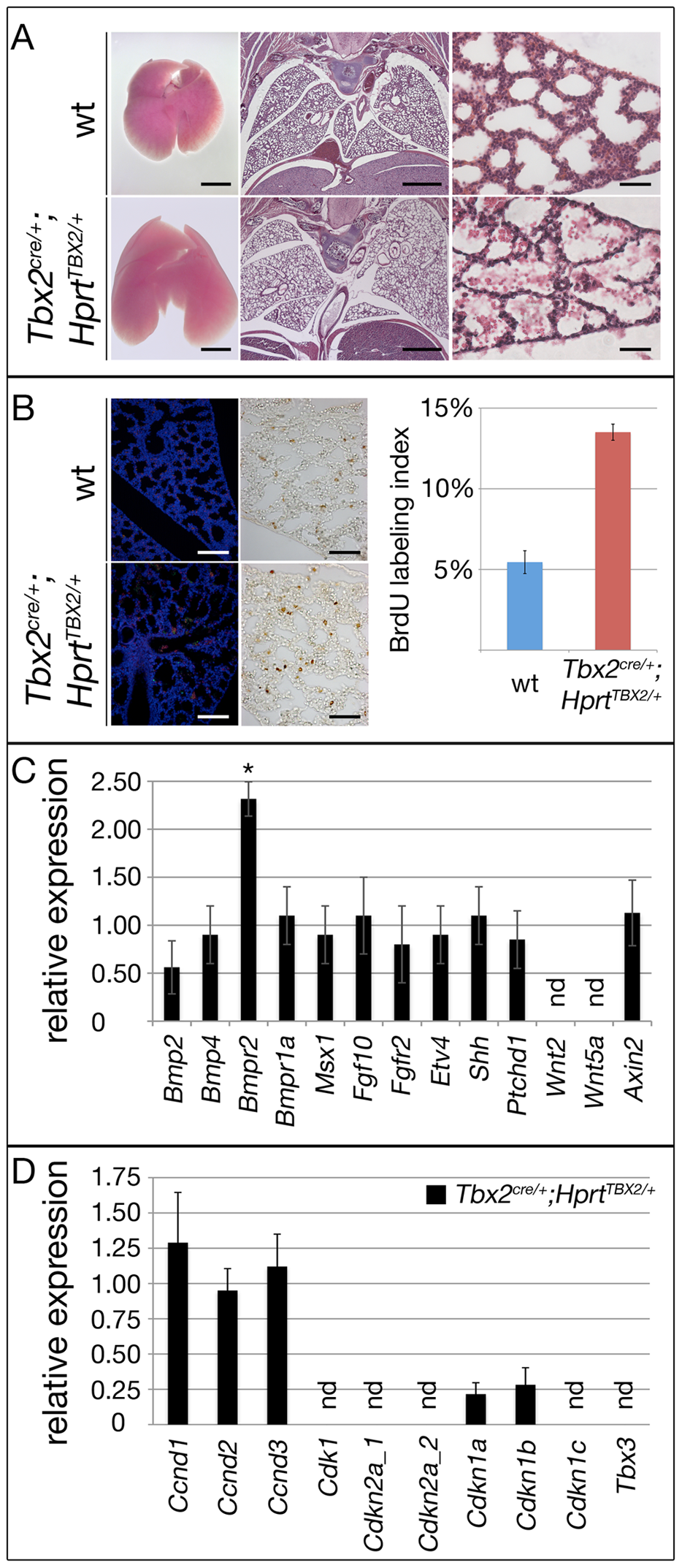 Prolonged expression of TBX2 maintains proliferation of mesenchymal progenitor cells in the embryonic lung.