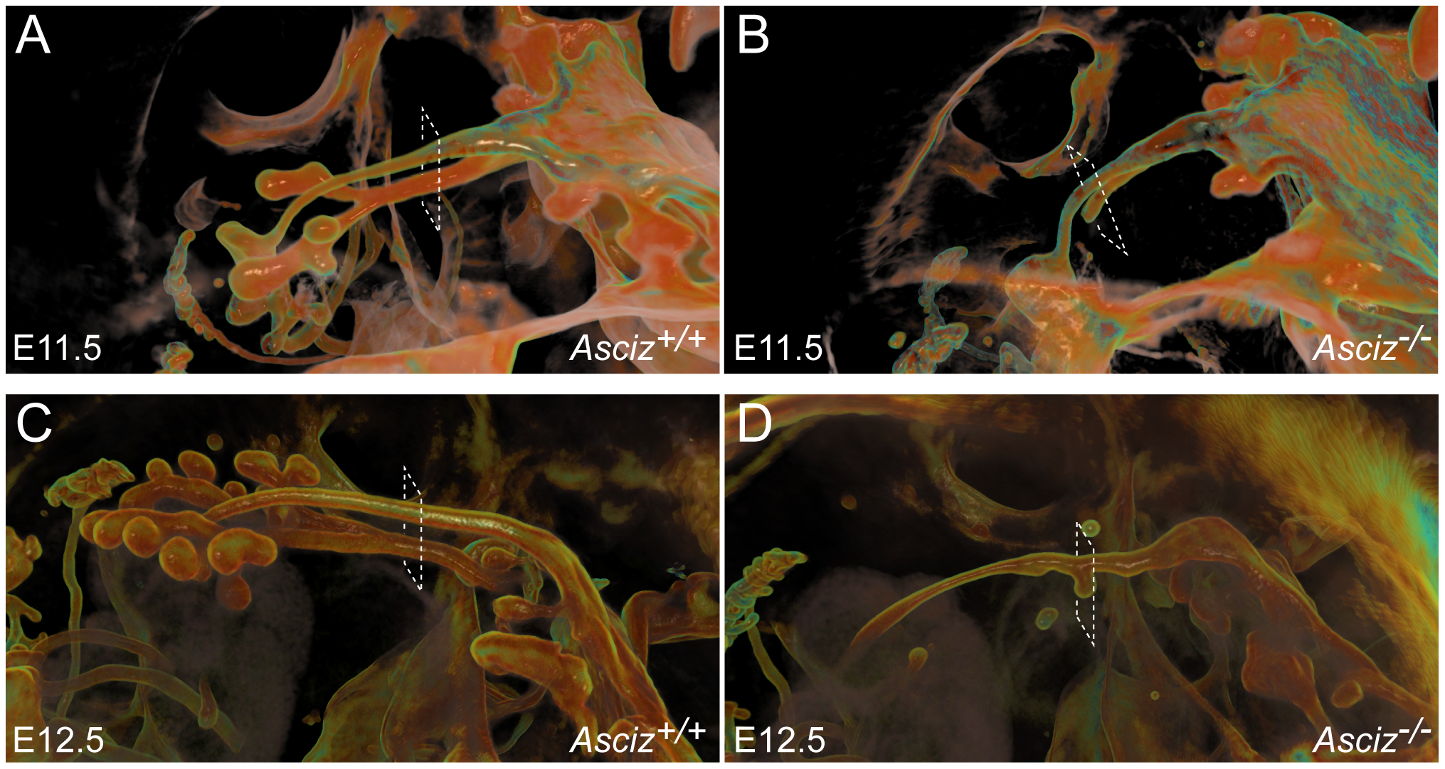 Defective pulmonary and tracheal development in <i>Asciz</i>-null embryos.