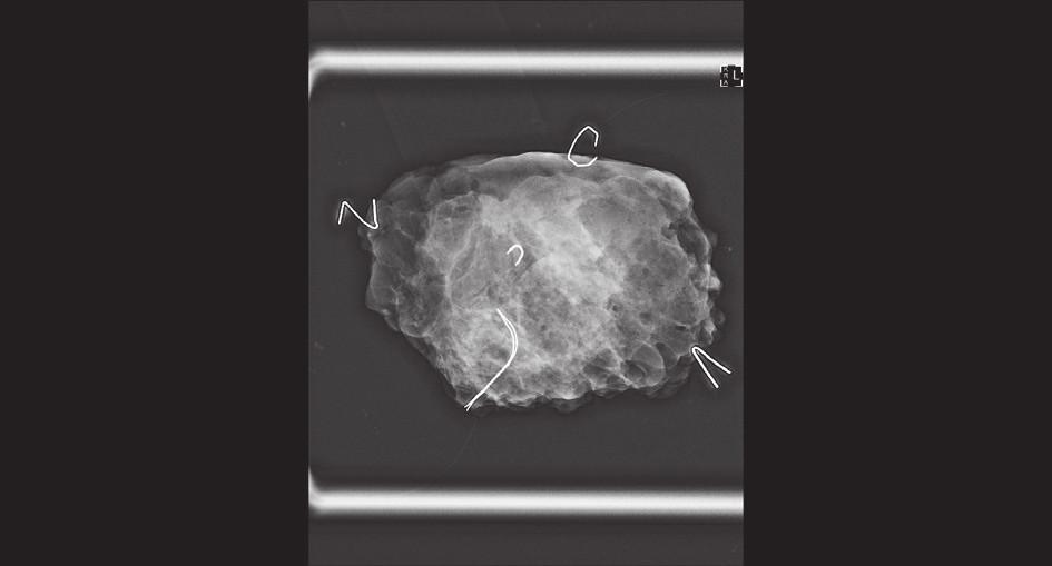 """Peroperační RTG resekátu − okraje značeny """"písmeny"""" ze svorek z kancelářské sešívačky; klipem je značené reziduum nádoru v centru resekátu Fig. 1: Peroperative X-ray of the resected specimen – margins marked with """"letters"""" (staples for desktop stapler); tumor residuum marked with a clip in the center of the specimen"""