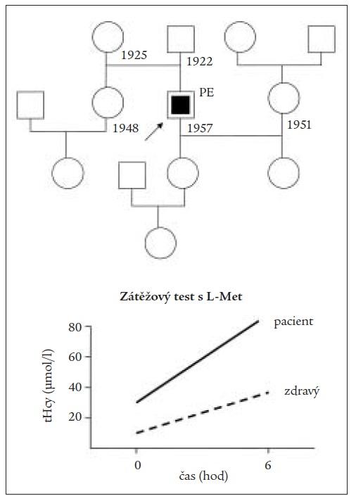 Rodokmen a pozitivní výsledek zátežového methioninového testu u pacienta s embolií plicnice a hyperhomocysteinemií z deficitu kobalaminu.