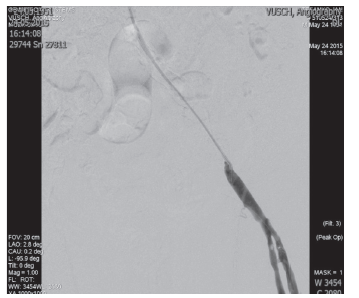 Implantácia balón-expandibilného stentu do AIE l.sin. Fig. 6: Implantation of the baloon expandible stent in AIE l.sin.