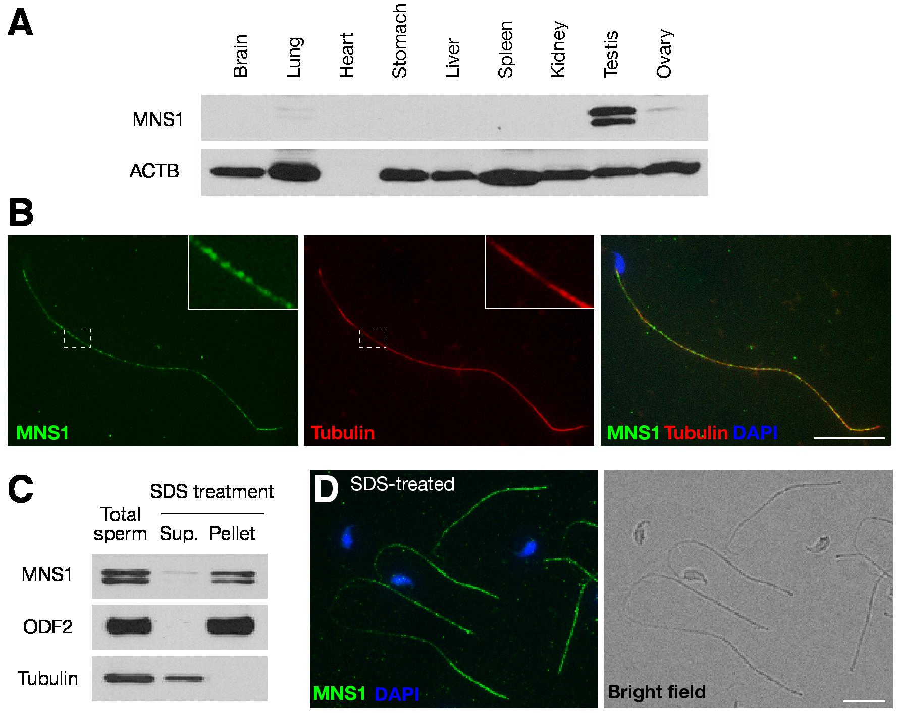 MNS1 is an integral component of sperm flagella.