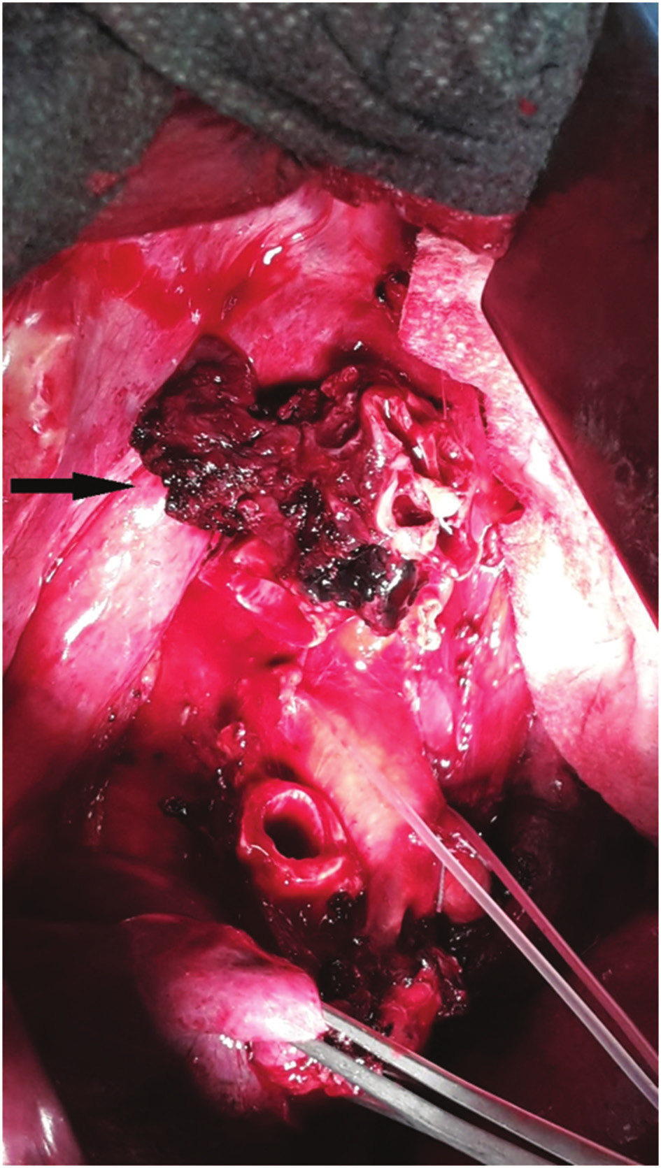 Nádorové postižení kariny, stav po horní lobektomii vpravo Fig. 3: Tumor of the carina; status after right upper lobectomy