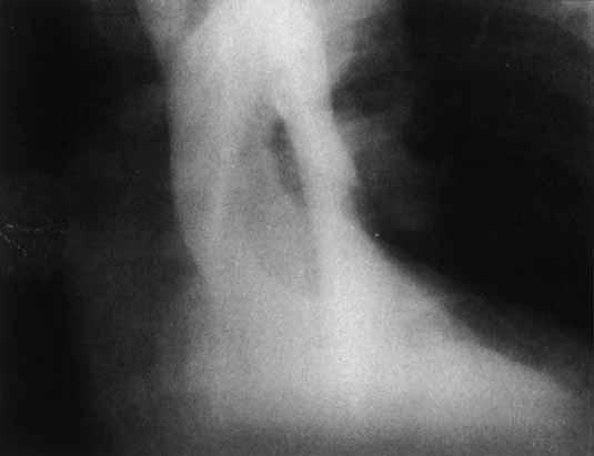 Aortogram v antero-posteriorní projekci u aortální direkce. Pravé lumen je komprimováno neopákním falešným lumen.
