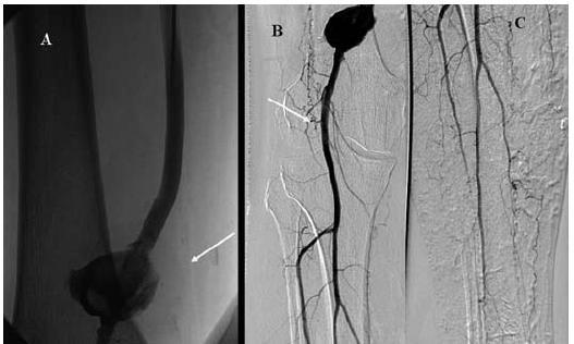 Kontrolní angiografie po 24 hod trombolýzy prokazuje průchodný bypass (panel A) a velké pseudoaneuryzma v mistě minulé implantaci stentu (panel B) a dobře průchodné bércové tepny (panel C).