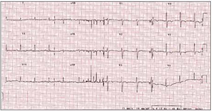 EKG při přijetí.