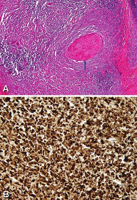"""""""Zánětlivý pseudotumor orbity"""": (A) Intenzivní lymfoplazmocelulární zánětlivý infiltrát obklopující nerv (oválná struktura napravo od středu, šipka) a fibróza (vazivový pruh) vpravo (HE, zvětšeno 100). (B) Pozitivní imunohistochemický průkaz IgG4 ve formě hnědého zabarvení cytoplazmy plazmatických buněk (zvětšeno 400)."""