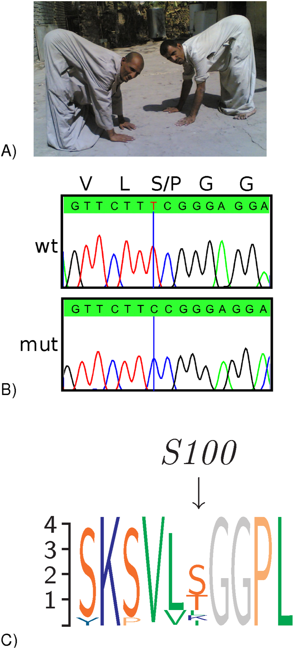 <i>CA8</i> Mutations in two families with ataxia and mild mental retardation.