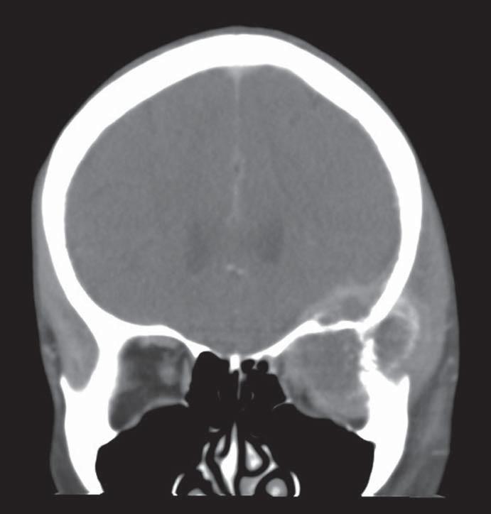 CT hlavy s nálezem progrese metastázy orbity přes systémovou léčbu kapecitabinem  a lokální paliativní radioterapii ložiska.