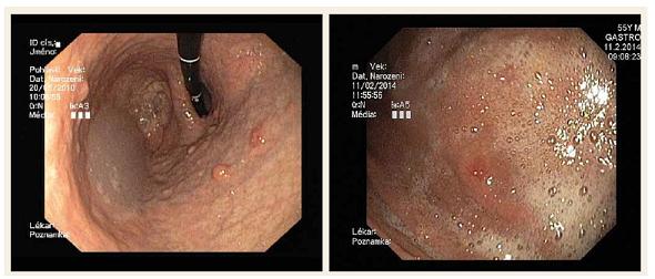 Neuroendokrinní nádor žaludku. Fig. 1. Neuroendocrine tumour of the stomach.