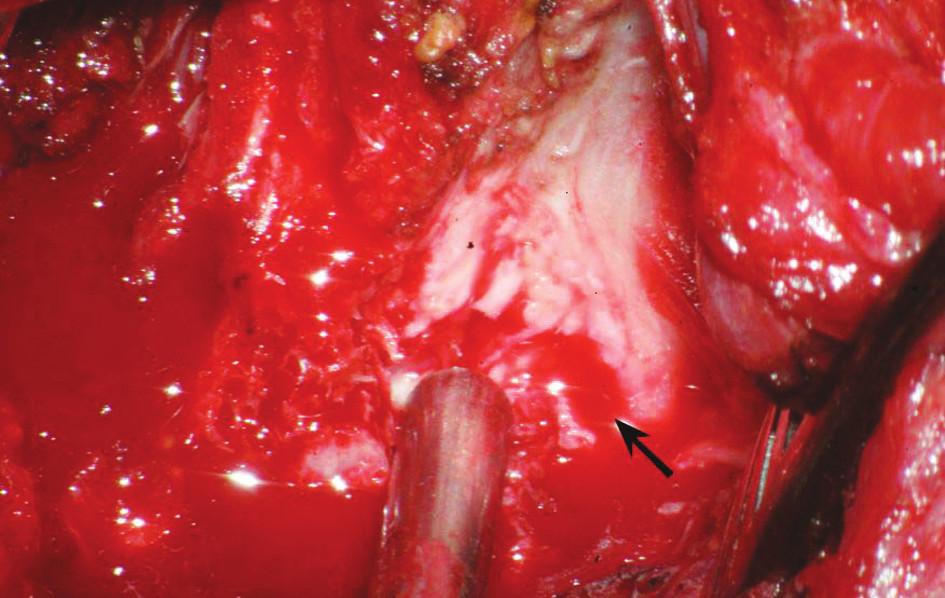 Operační fotografie: šipka ukazuje laceraci dorzální porce a pravé poloviny míchy. Tomu odpovídá klinika hemisyndromu míšního Brownova-Séqurdova typu v kombinaci s kompletním postižením zadních provazců.