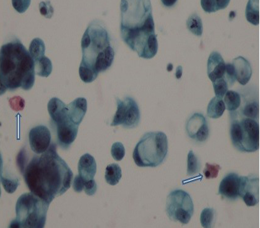 Fig. 3. The majority of tumor cells were the signet ring cell carcinoma cells and in view of the nucleus pushed aside on the ground (arrows).