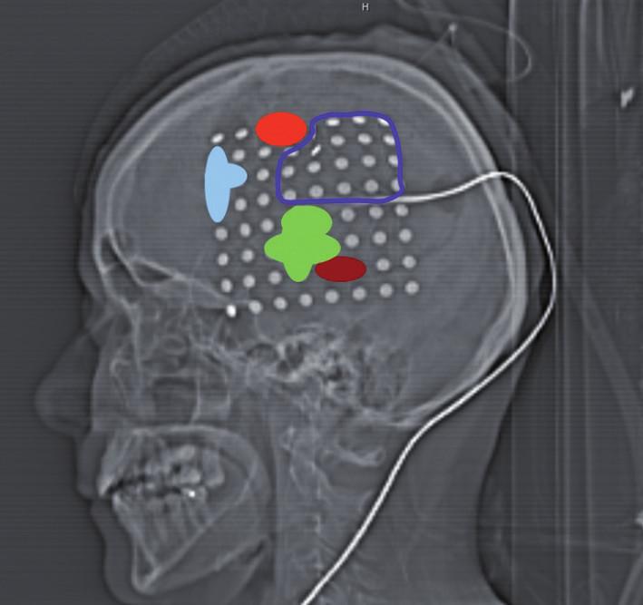 CT laterogram po zavedení 64svodového gridu: světle modrá – zástava řeči, zelená – porucha pojmenování, hnědá – porucha tvorby vět, červená – záškuby mimického svalstva, tmavě modrá – rozsah parciální resekce.