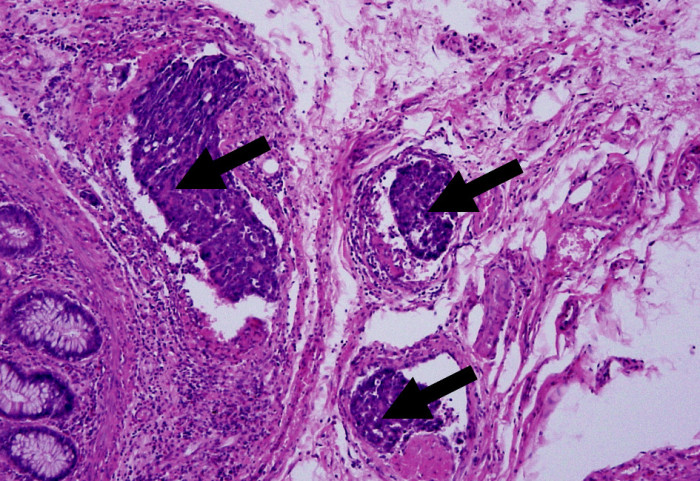 Lymfangioinvaze karcinomu rekta v mezorektální tukové tkáni (HE, 100x) Fig. 1. Lymphangioinvasion of rectal carcinoma in the mesorectal fat tissue (HE, 100x)