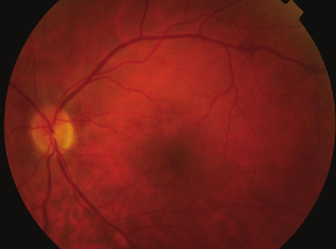 Pac. č. 1 – farebná fotografia po operácii, ešte pozorovať diskrétne intraretinálne hemoragie a zmeny na cievach v rámci systémového ochorenia sarkoidózy