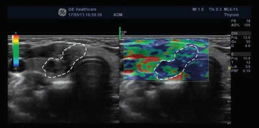 Vpravo elastogram papilárního karcinomu, vlevo klasické 2D-zobrazení (zdroj: archiv autora)