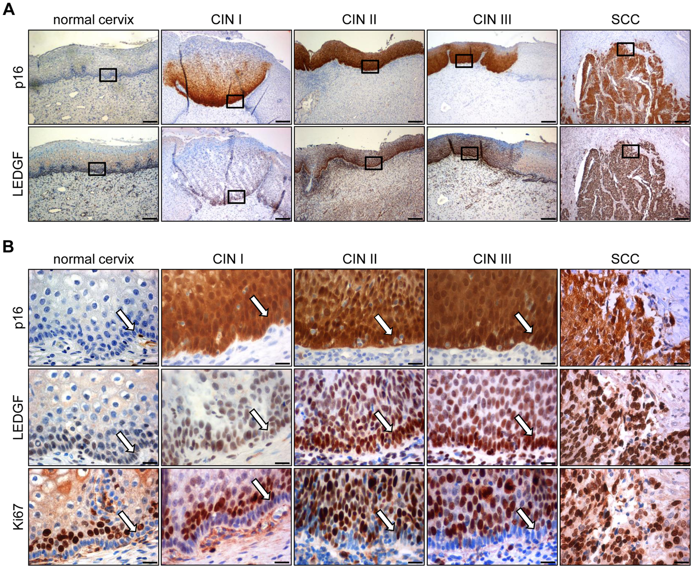 Immunohistochemical analysis of LEDGF expression.