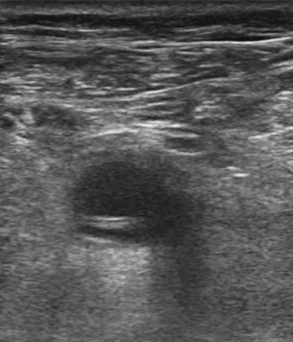 """Zobrazená arteria poplitea v priečnom reze. Viditeľný """"intimal flap"""" – vlajúca intima, v hornej časti tepny veľký falošný lúmen, v dolnej časti malý pravý lúmen Fig. 5. The popliteal artery – transverse section. The view shows the """"intimal flap"""", a false lumen in the proximal part of the artery, a small true lumen in the distal part of the artery"""