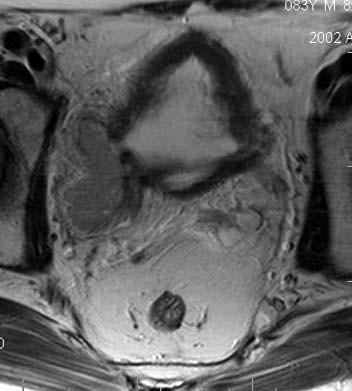 Karcinom měchýře v divertiklu