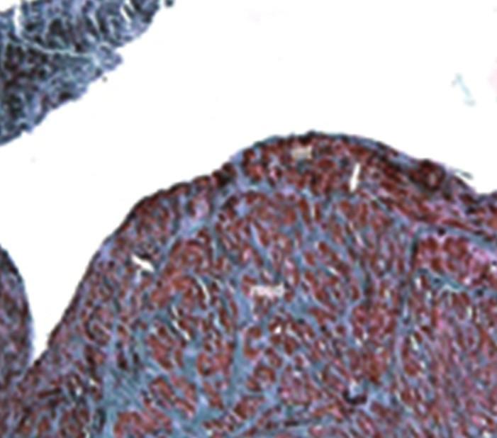 Detail stěny žíly ošetřené laserem Stěna je polštářovitě ztluštělá. Zesílená tunica media (med). Tunica int. (int) je od tunica media oddělena zřetelnou vrstvou elastického vaziva (šipky). Barvení orceinem, zvětšení 10x20. Fig. 5: Detail of the vein treated with laser Thickening of the tunica media (med). Tunica int. (int) is separated from the tunica media by a clearly visible elastic fibrous tissue layer (arrows). Dyed with orcein, magnification 10x20.