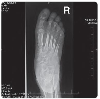 Osteolýza os cuboideum a okolitých cuboideometatarzálnych kĺbov na RTG pravej nohy.