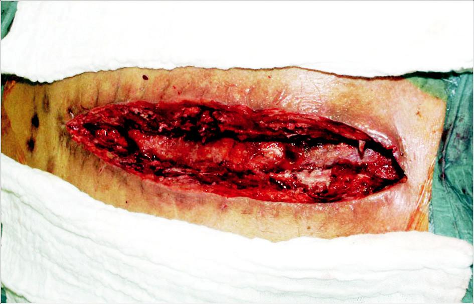 Hluboká sternální infekce. Debridement před aplikací VAC systému Fig. 1. Deep sternal infection. Surgical debridement prior to application of the VAC system