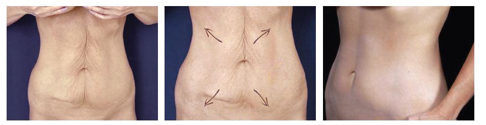 Horní a dolní miniabdominoplastika u 59 leté ženy Fig. 6: Upper and lower abdominoplasty in a 59 year old female