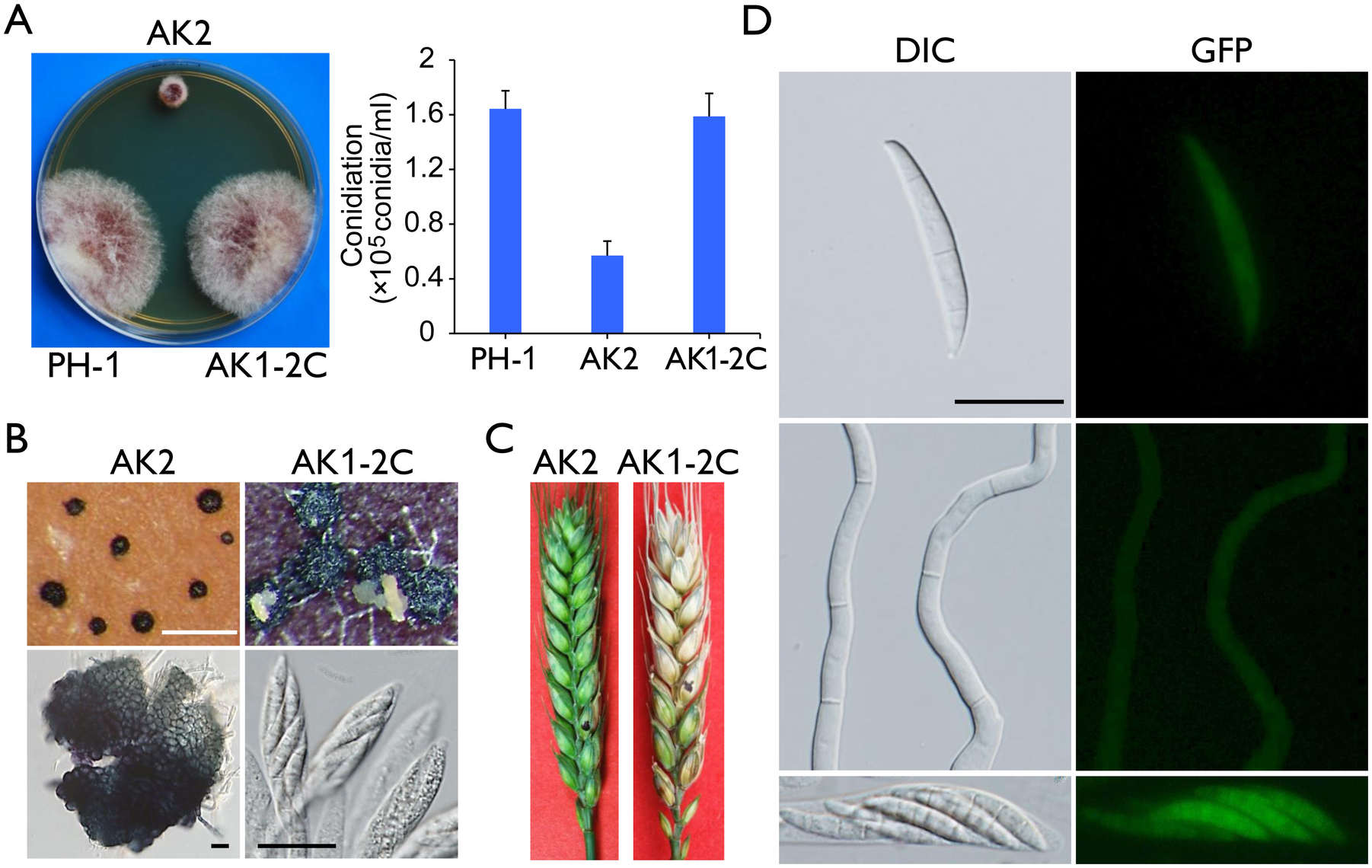 Defects of the <i>Fgcak1</i> mutant in vegetative growth, sexual reproduction, and plant infection and subcellular localization of FgCak1-GFP fusion protein.